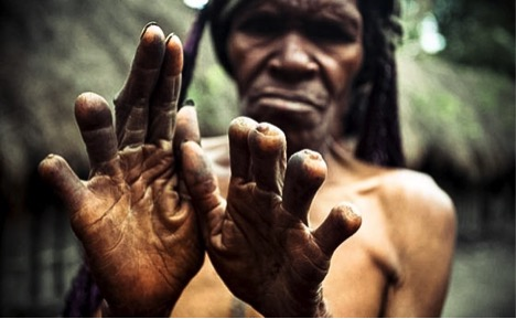 Explothe the cutting fingers tradition among Indonesian tribe members_1